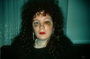 01_Nan_Goldin_Nan_one_month_after_being_battered_1984